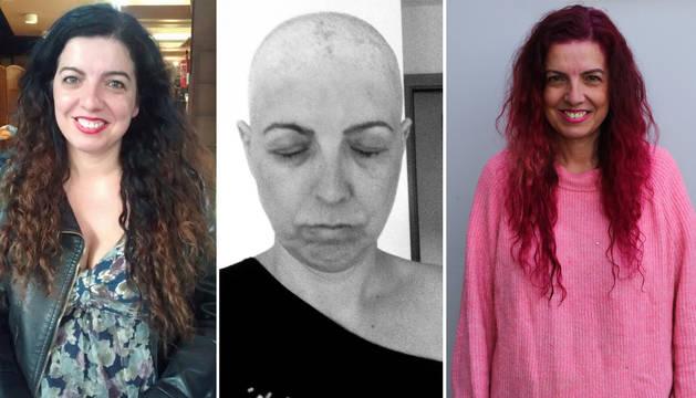 Fotos de la evolución de María Vallejo, enferma de cáncer de mama hace tres años.