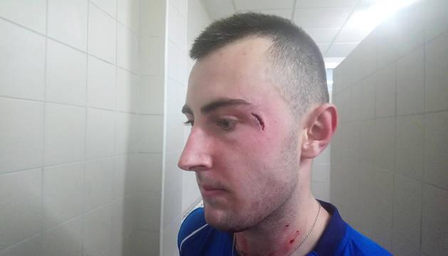Aspecto que presentaba la herida en la ceja izquierda de Bakaikoa.