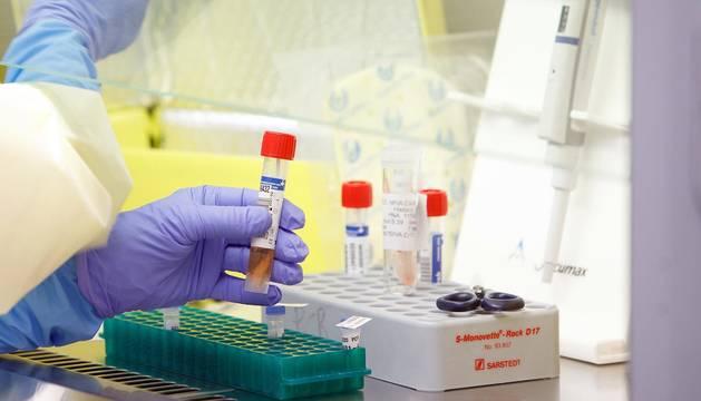 foto de Tubo de muestra de coronavirus para analizar