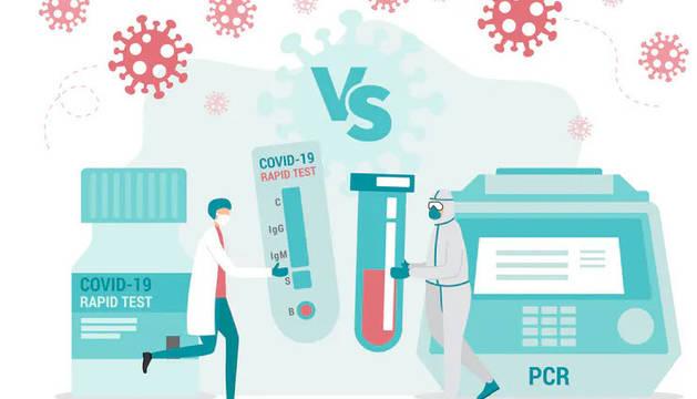 Los test serológicos o rápidos identifican la presencia de anticuerpos en la sangre