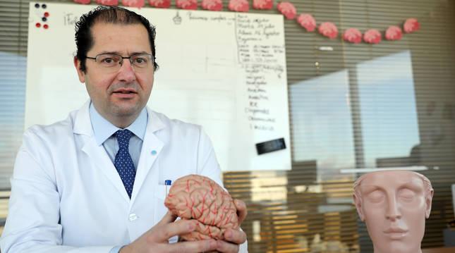 Foto de Pablo Irimia, gallego de 49 años, posa con la figura de un cerebro en su consulta de neruología de la CUN.