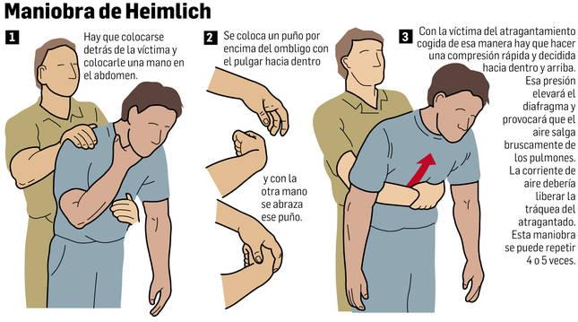 Pasos para realizar la maniobra de Heimlich
