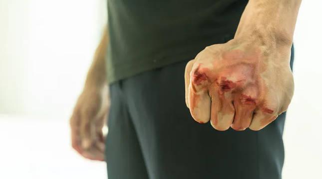 Recreación de una persona tras una agresión.