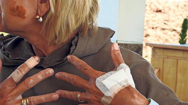 La mujer muestra parte de las heridas sufridas en el ataque.