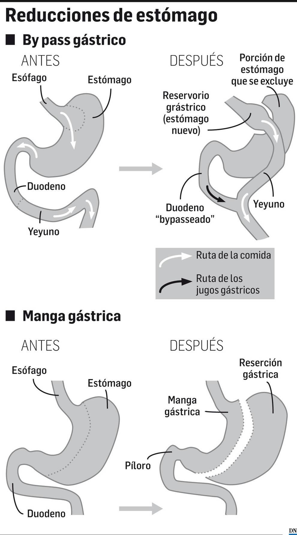 Métodos de reducciones de estómago