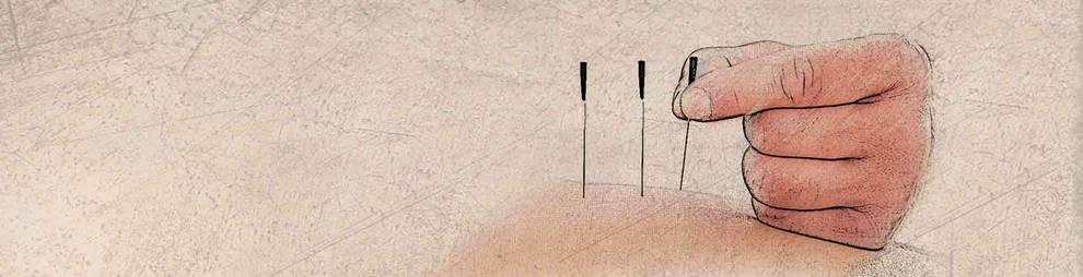 Foto de tratamiento de acupuntura