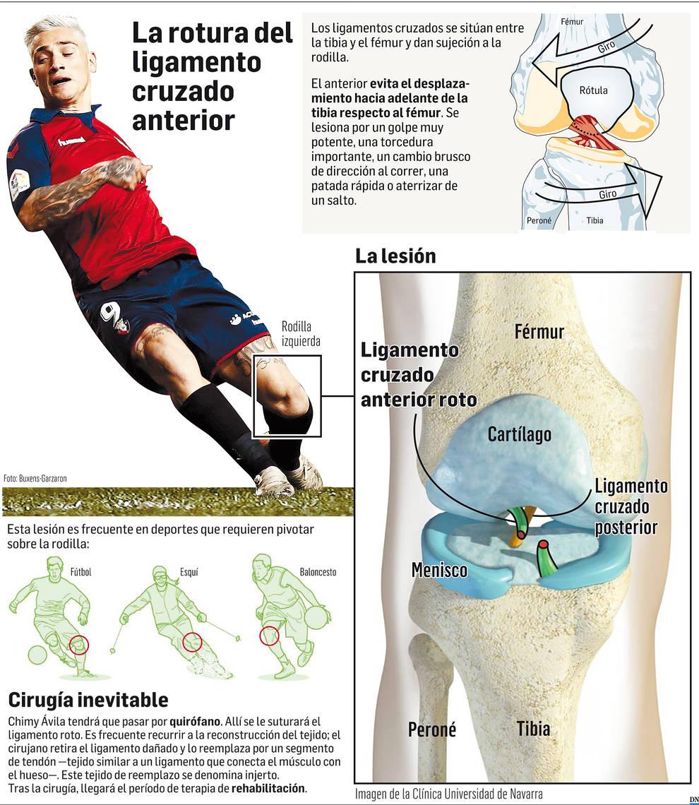Se confirma la grave lesión del Chimy Ávila