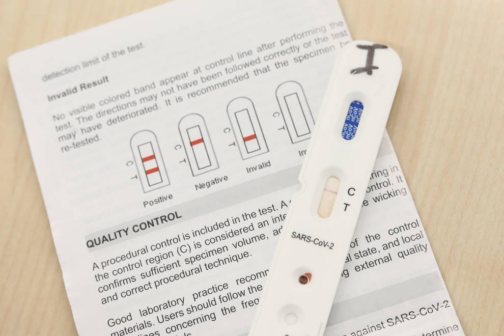 Navarra incorpora los test rápidos a urgencias hospitalarias